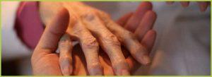 riabilitazione-reumatologica_960x350